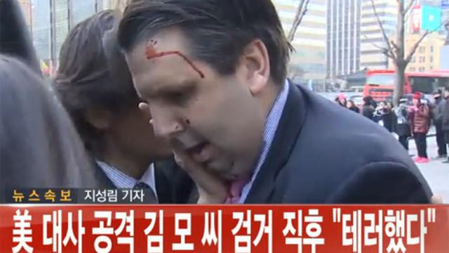리퍼트 미 대사 괴한에게 습격