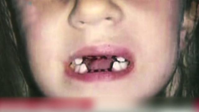 멀쩡한 이 7개 뽑은 치과의사