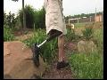 대퇴의족 14 : 지니움의족 2 : Genium Knee