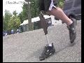 대퇴의족 14 :  지니움의족 1 : Genium Knee