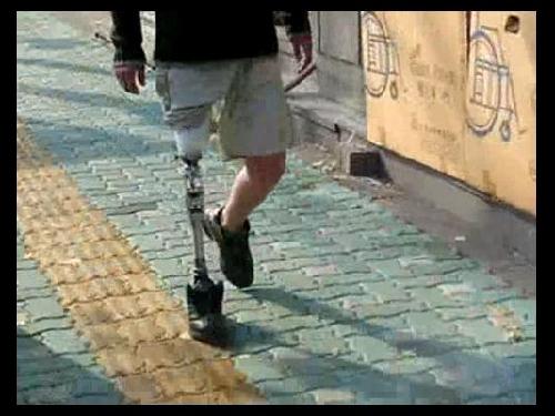 대퇴의족 11 : 토탈 니(Total Knee) 보행 외