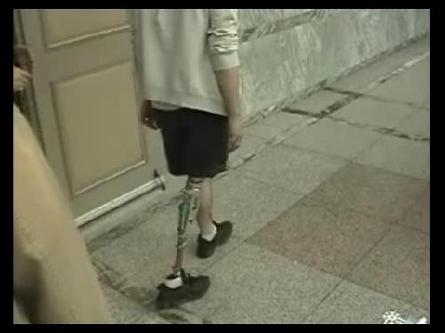 대퇴의족 8 : 하이브리드 니(Hybrid Knee) 의족 보행 1