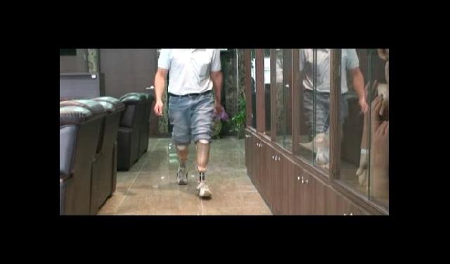 하퇴의족 3 : 양측 하퇴의족 보행 및 달리기 2